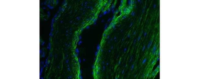 Collagen IV, Alexa Fluor 488, clone: 1042, eBioscience™: Primary Antibodies - Alphabetical Primary Antibodies