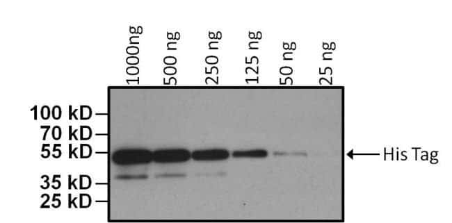 anti-6x-His Epitop-Tag-Klon: HIS.H8 50 μL; HRP Primary Antibodies Numeric
