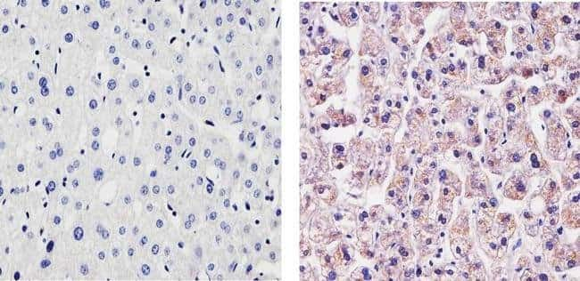 CRP Rabbit anti-Human, Mouse, Invitrogen 100 µg; Unconjugated