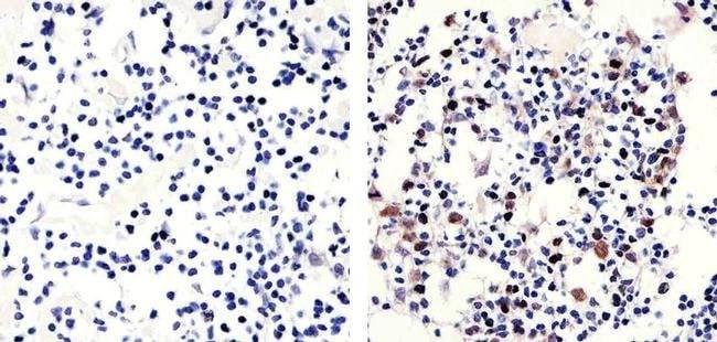 Phospho-Rb (Thr821) Rabbit anti-Human, Invitrogen 100 µg; Unconjugated