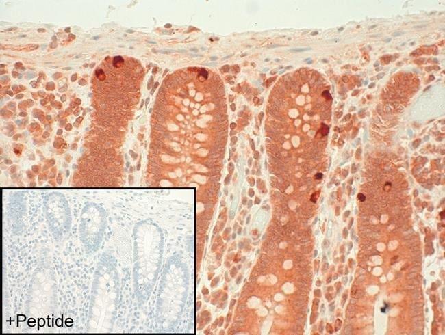Calcitonin Receptor Rabbit anti-Human, Polyclonal, Invitrogen 100 µg;