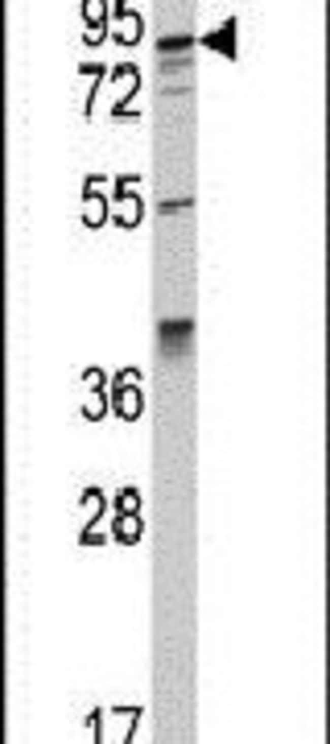 AAK1 Rabbit anti-Human, Polyclonal, Invitrogen 400 µL; Unconjugated