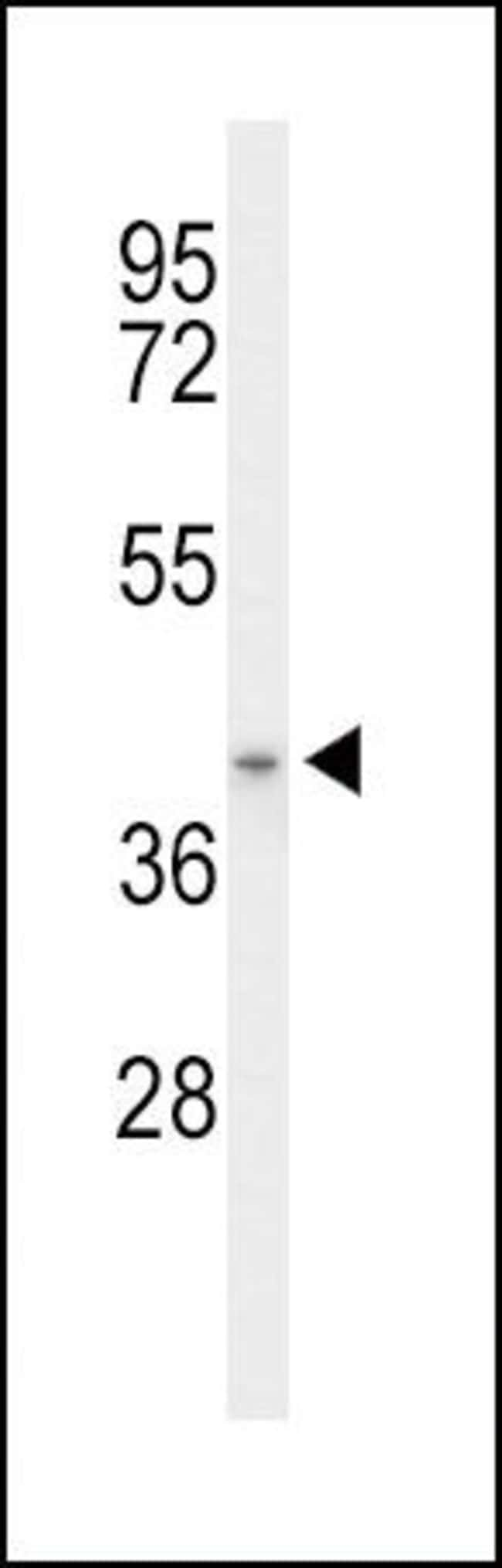 ACAD8 Rabbit anti-Human, Mouse, Polyclonal, Invitrogen 400 µL; Unconjugated