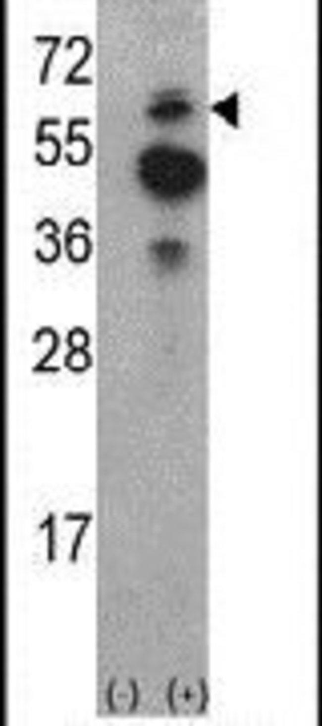 ACK1 Rabbit anti-Human, Polyclonal, Invitrogen 400 µL; Unconjugated