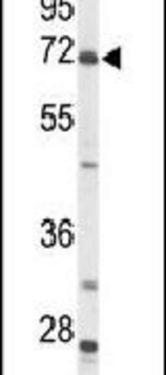 ACSS2 Rabbit anti-Human, Mouse, Polyclonal, Invitrogen 400 µL; Unconjugated
