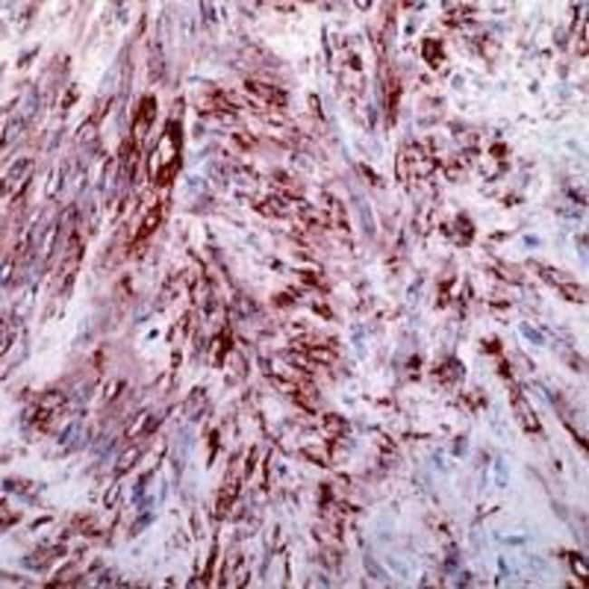 Alpha-Smooth Muscle Actin Rabbit anti-Human, Polyclonal, Invitrogen 1 mL;