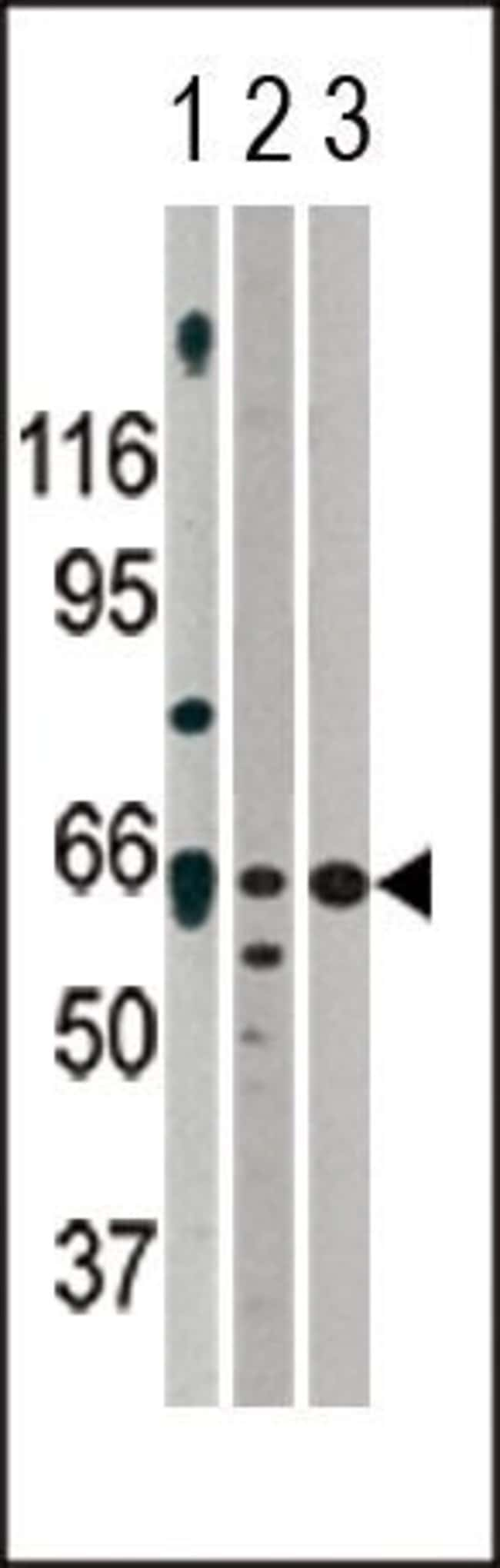 ACVR2A Rabbit anti-Human, Mouse, Polyclonal, Invitrogen 400 µL; Unconjugated