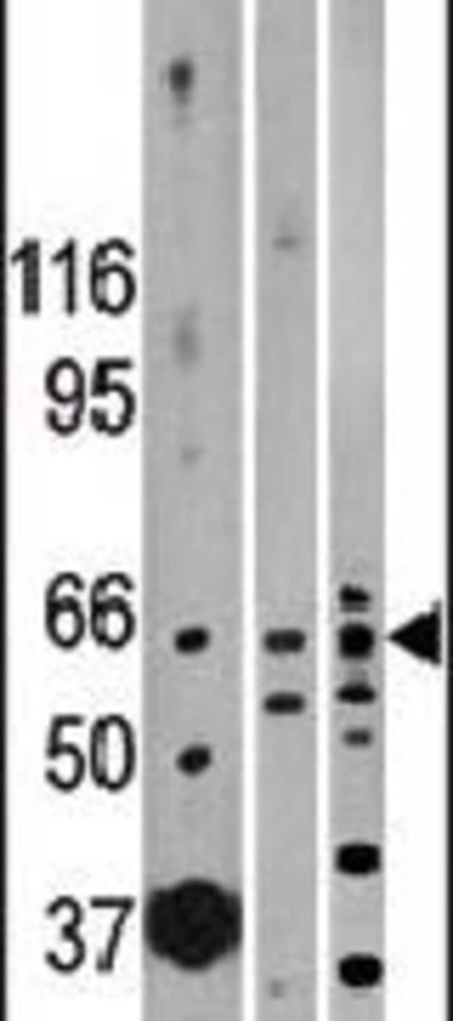 ACVR2B Rabbit anti-Human, Mouse, Polyclonal, Invitrogen 400 µL; Unconjugated