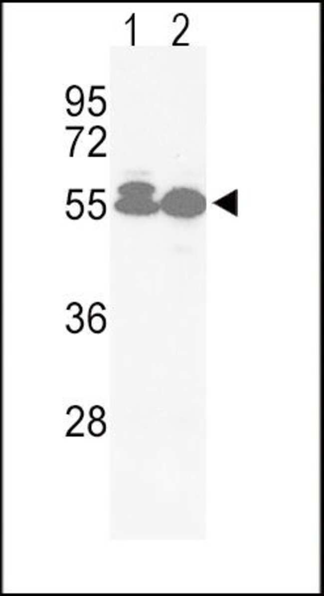 ACVRL1 Rabbit anti-Human, Polyclonal, Invitrogen 400 µL; Unconjugated