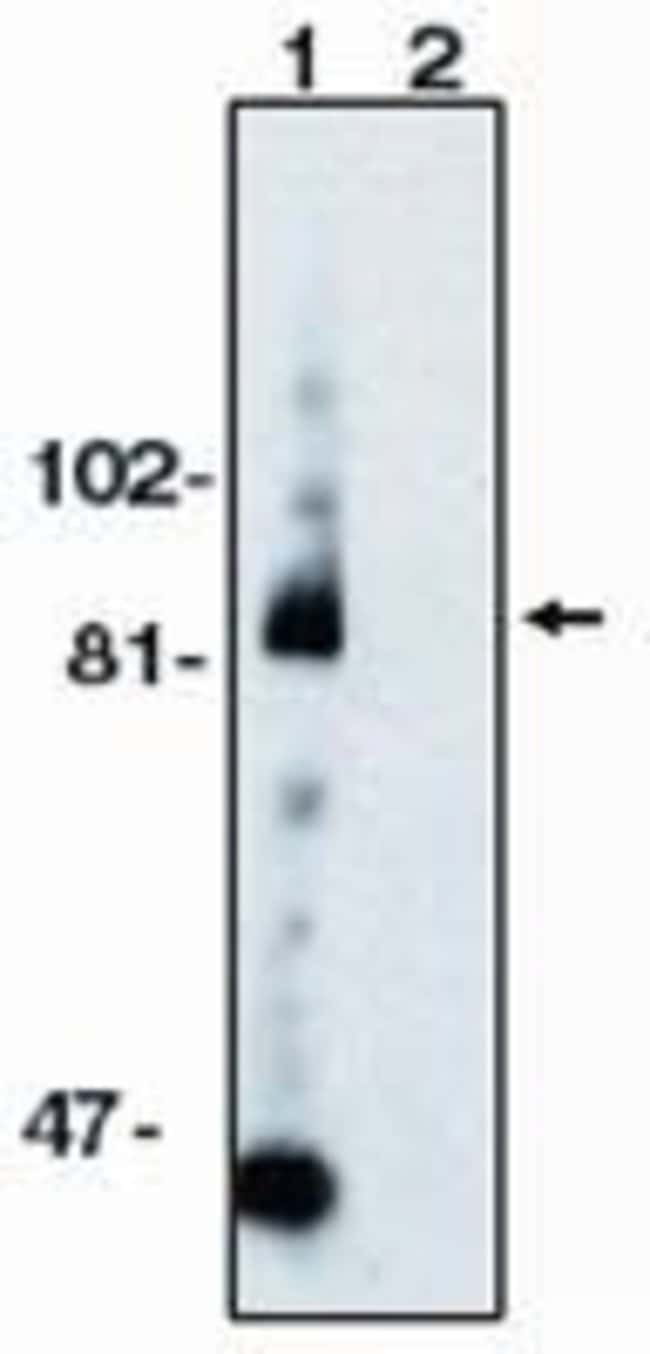 ADAM10 Rabbit anti-Human, Mouse, Rat, Polyclonal, Invitrogen 100 µg;