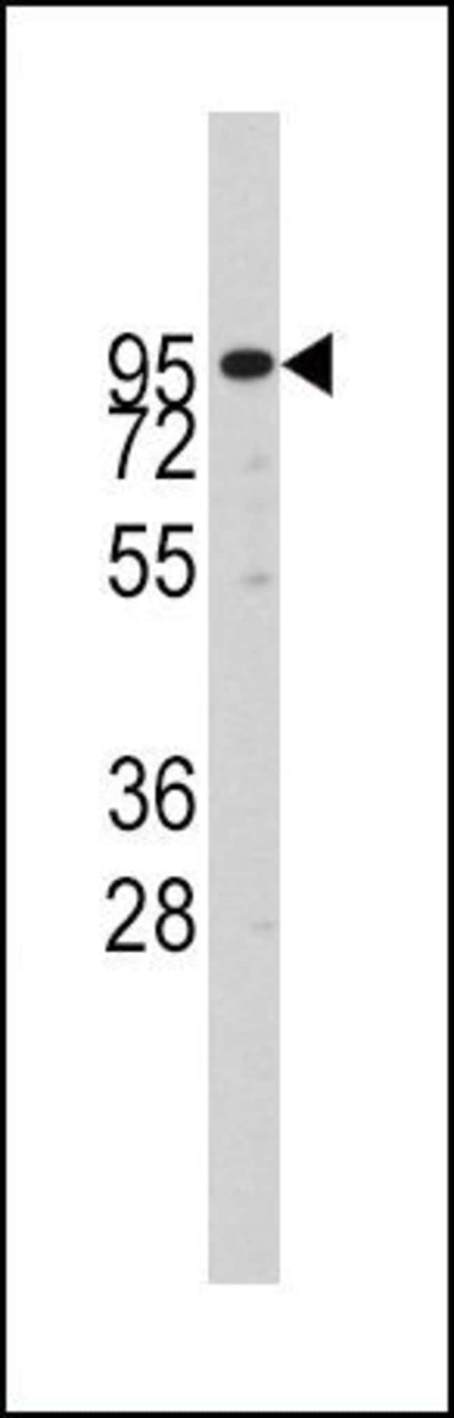 ADAM17 Rabbit anti-Human, Polyclonal, Invitrogen 400 µL; Unconjugated