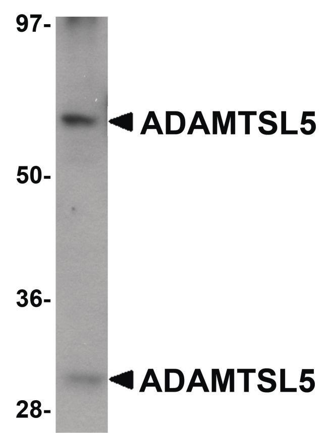 ADAMTSL5 Chicken anti-Human, Mouse, Rat, Polyclonal, Invitrogen 100 µg;