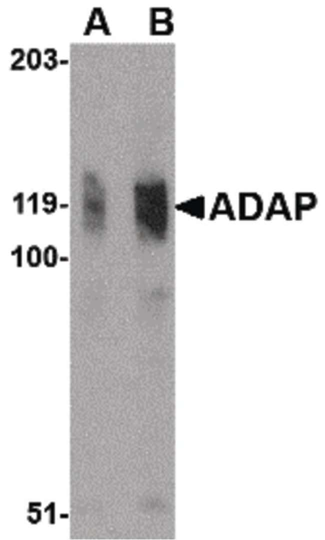 ADAP Rabbit anti-Human, Polyclonal, Invitrogen 100 µg; Unconjugated