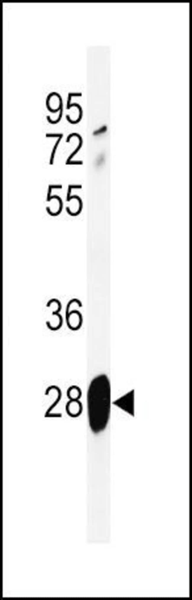 Adrenomedullin Rabbit anti-Human, Mouse, Polyclonal, Invitrogen 400 µL;
