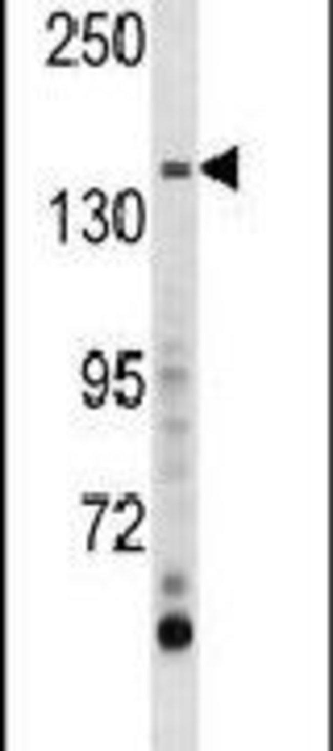 AEBP1 Rabbit anti-Human, Mouse, Polyclonal, Invitrogen 400 µL; Unconjugated