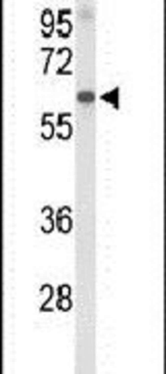 Afamin Rabbit anti-Human, Polyclonal, Invitrogen 400 µL; Unconjugated