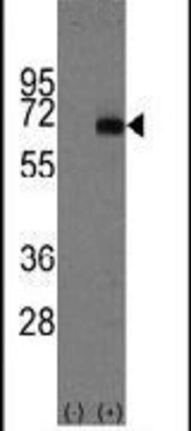 AFP Rabbit anti-Human, Polyclonal, Invitrogen 400 µL; Unconjugated