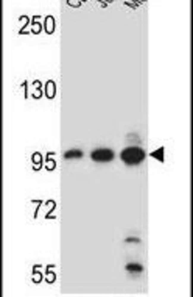 AFTPH Rabbit anti-Human, Polyclonal, Invitrogen 400 µL; Unconjugated