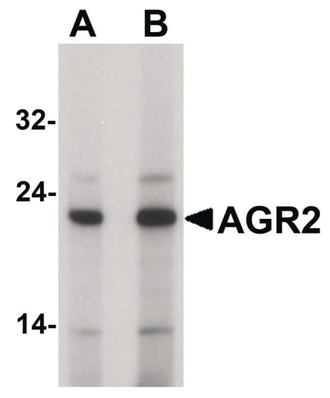 AGR2 Rabbit anti-Human, Polyclonal, Invitrogen™ 100 μg; Unconjugated Primary Antibodies Ad to Ak