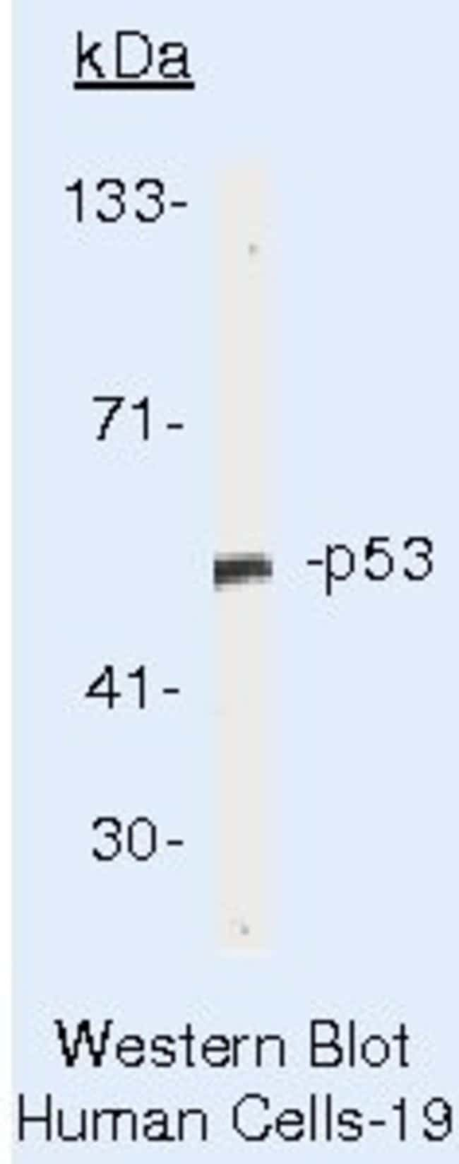 p53 Mouse anti-Human, Rhesus Monkey, Clone: PAb 240, Invitrogen   500µL;