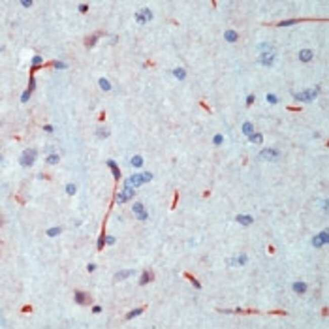 INSR beta Mouse anti-Human, Mouse, Rat, Clone: CT-3, Invitrogen   500 µL;
