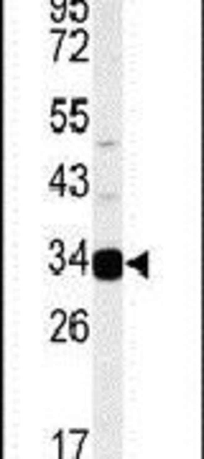 AIG1 Rabbit anti-Human, Mouse, Polyclonal, Invitrogen 400 µL; Unconjugated