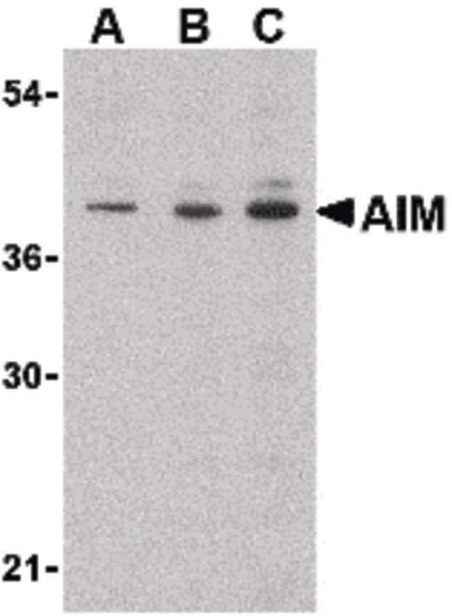 AIM Rabbit anti-Human, Mouse, Polyclonal, Invitrogen 100 µg; Unconjugated