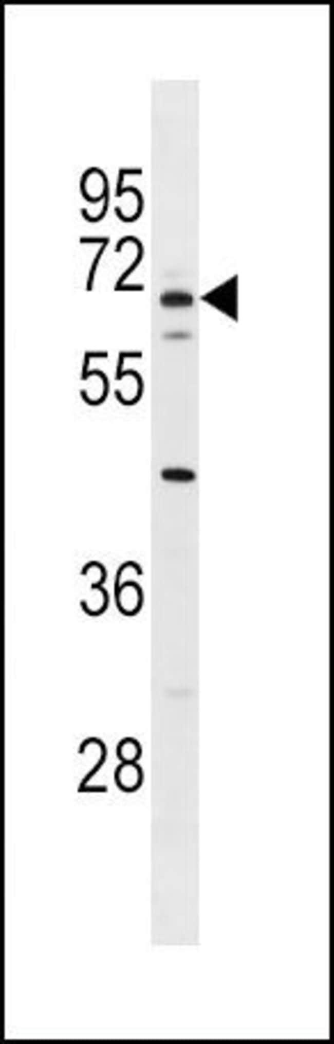 Serum Albumin Rabbit anti-Human, Mouse, Polyclonal, Invitrogen 200µL;