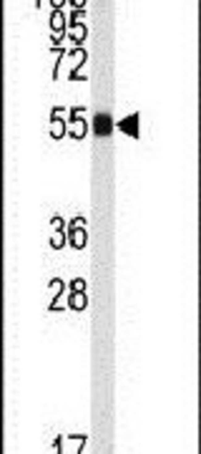 ALDH9A1 Rabbit anti-Human, Mouse, Polyclonal, Invitrogen 400 µL; Unconjugated