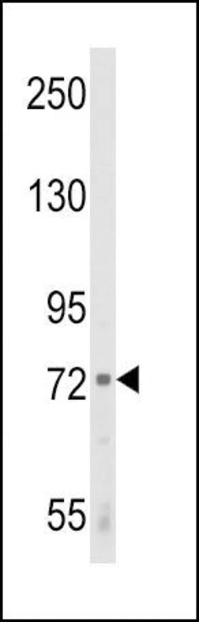 ALOX12 Rabbit anti-Human, Polyclonal, Invitrogen 400 µL; Unconjugated