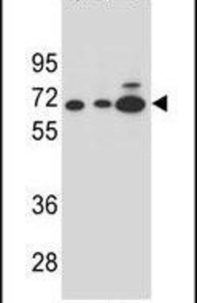 alpha Amylase 2B Rabbit anti-Human, Polyclonal, Invitrogen 400 µL;