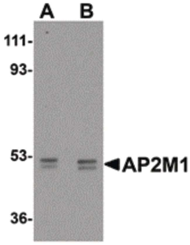AP2M1 Chicken anti-Human, Mouse, Rat, Polyclonal, Invitrogen 100 µg;