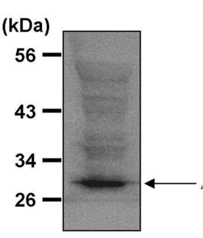 ATG5 Rabbit anti-Human, Polyclonal, Invitrogen 500 µg; Unconjugated