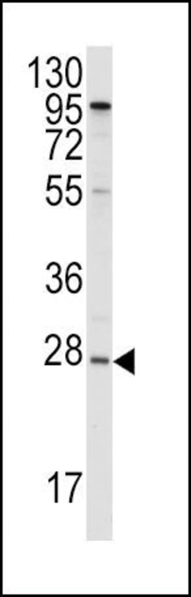 ApoA1 Rabbit anti-Human, Polyclonal, Invitrogen 400 µL; Unconjugated