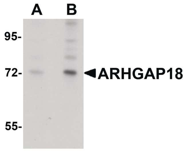 ARHGAP18 Rabbit anti-Human, Mouse, Rat, Polyclonal, Invitrogen 100 µg;