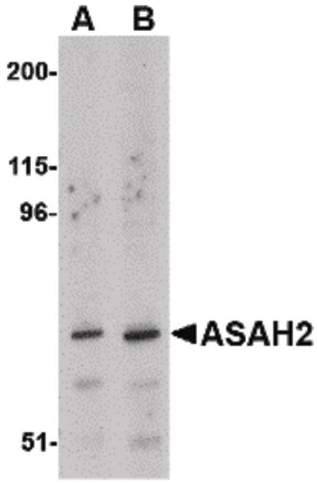 ASAH2 Rabbit anti-Human, Mouse, Rat, Polyclonal, Invitrogen 100 µg;
