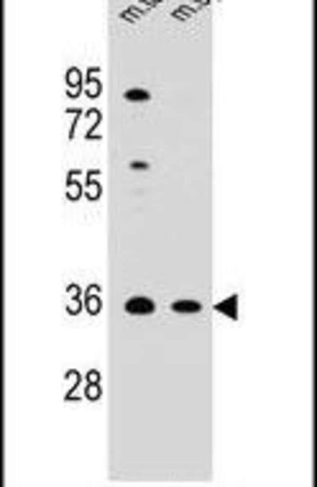 ASB17 Rabbit anti-Human, Mouse, Polyclonal, Invitrogen 400 µL; Unconjugated
