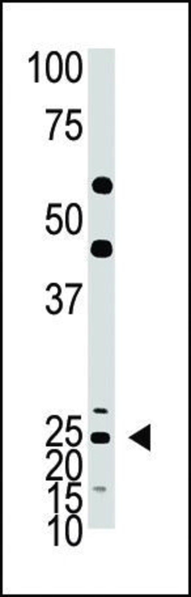 ASCL1 Rabbit anti-Human, Mouse, Polyclonal, Invitrogen 400 µL; Unconjugated