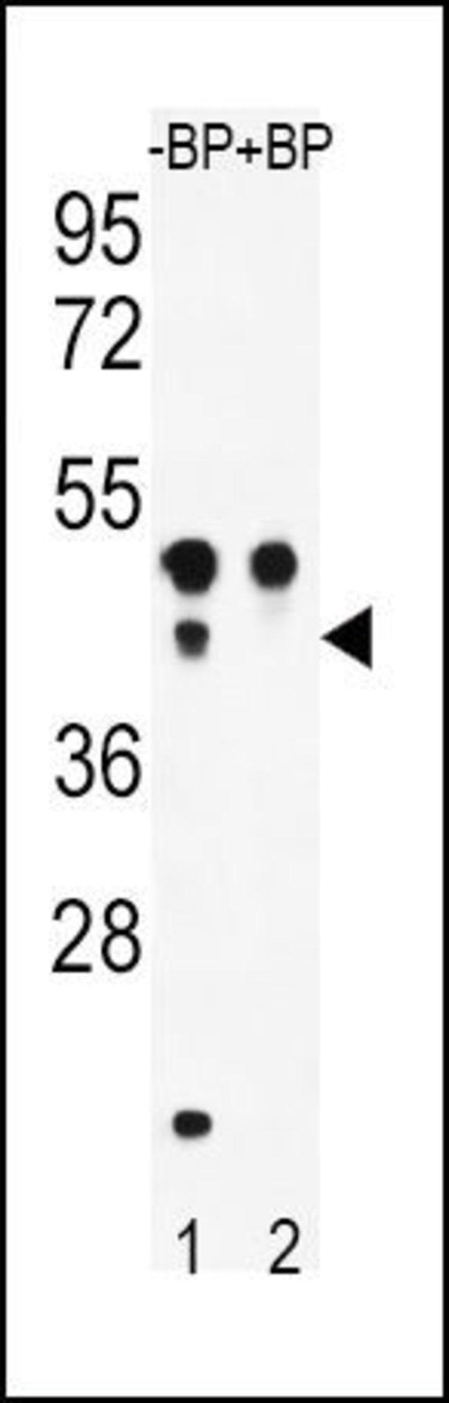 ATF4 Rabbit anti-Human, Polyclonal, Invitrogen 400 µL; Unconjugated