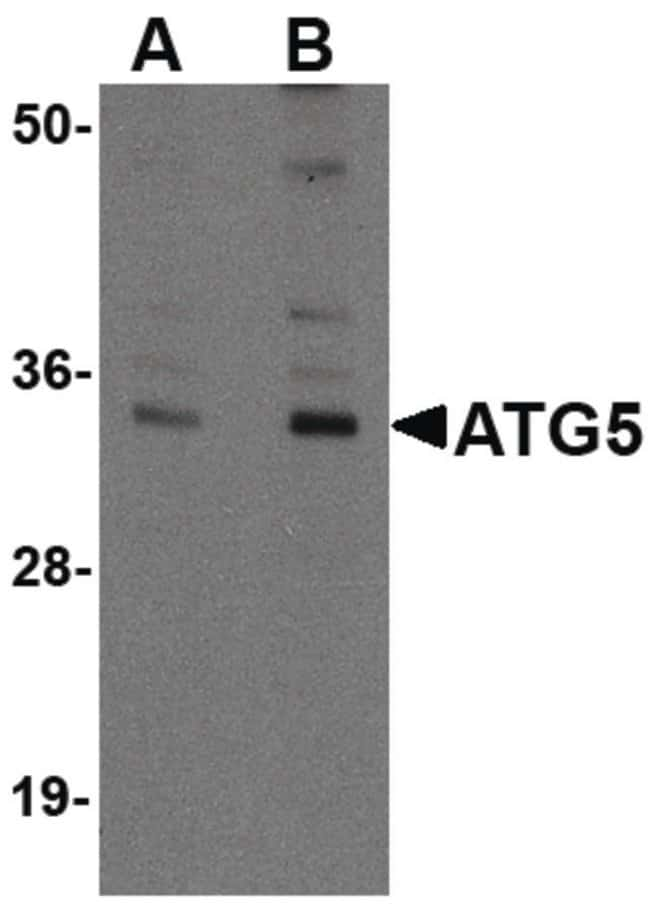 ATG5 Chicken anti-Human, Mouse, Polyclonal, Invitrogen 100 µg; Unconjugated