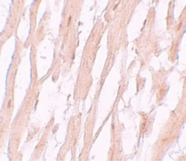 ATG9A Rabbit anti-Human, Mouse, Rat, Polyclonal, Invitrogen 100 µg;