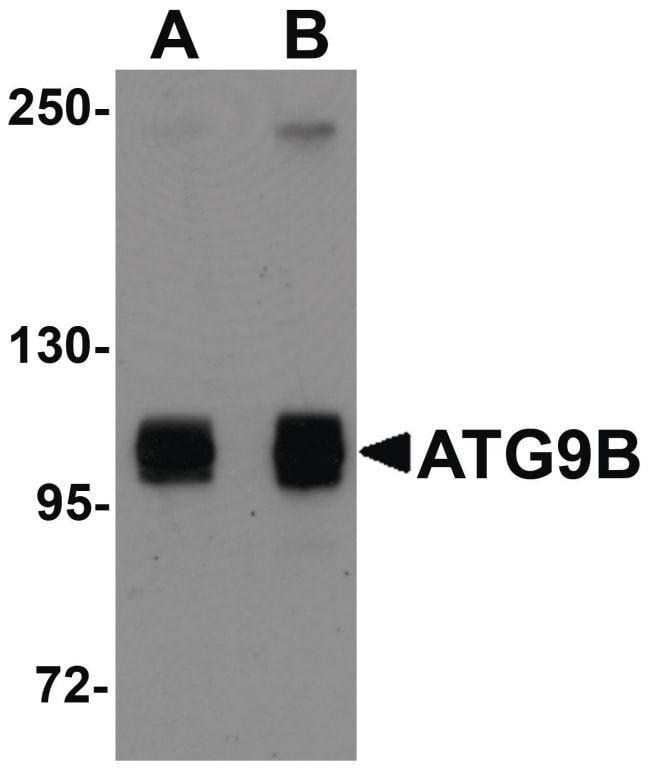 ATG9B Rabbit anti-Human, Mouse, Rat, Polyclonal, Invitrogen 100 µg;