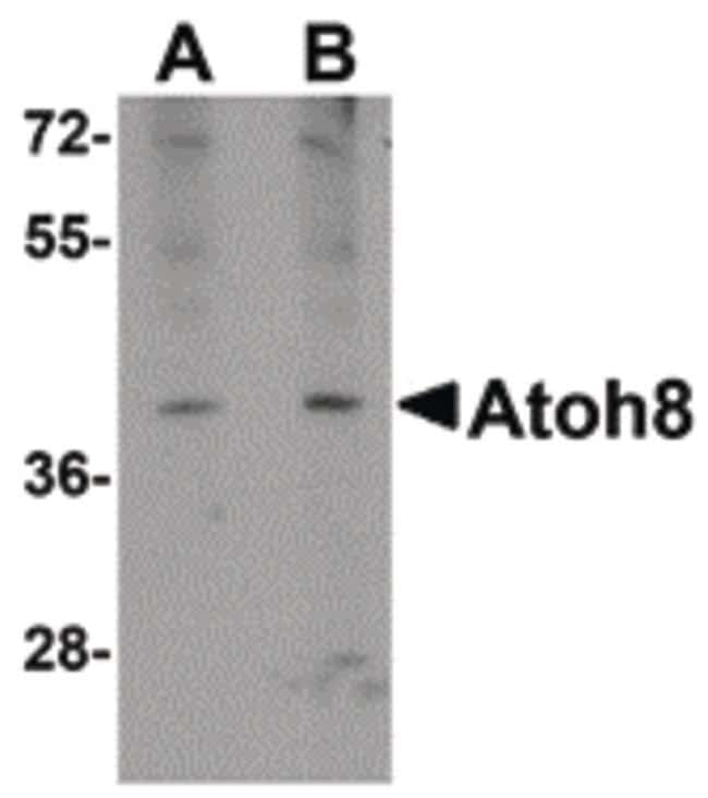 ATOH8 Rabbit anti-Human, Mouse, Rat, Polyclonal, Invitrogen 100 µg;