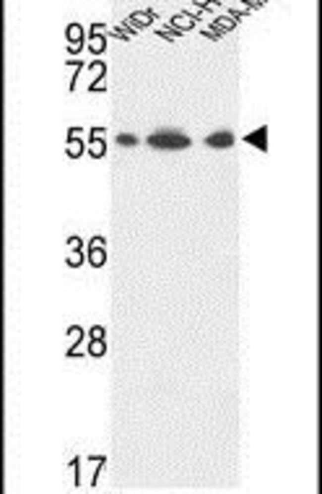 ATP5A1 Rabbit anti-Human, Mammalia, Mouse, Polyclonal, Invitrogen 400 µL;