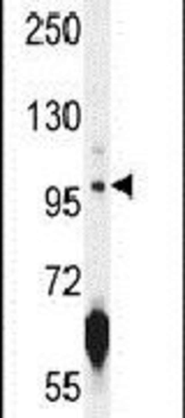 ATPGD1 Rabbit anti-Human, Mouse, Polyclonal, Invitrogen 400 µL; Unconjugated