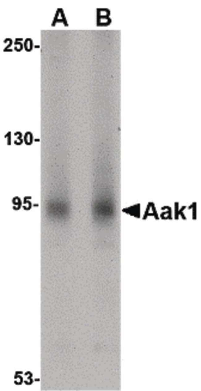 AAK1 Rabbit anti-Human, Mouse, Rat, Polyclonal, Invitrogen 100 µg;