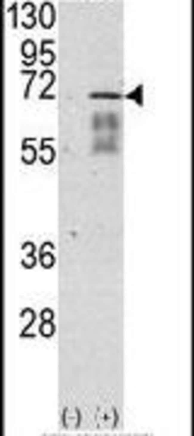 ACVR1 Rabbit anti-Human, Polyclonal, Invitrogen 400 µL; Unconjugated