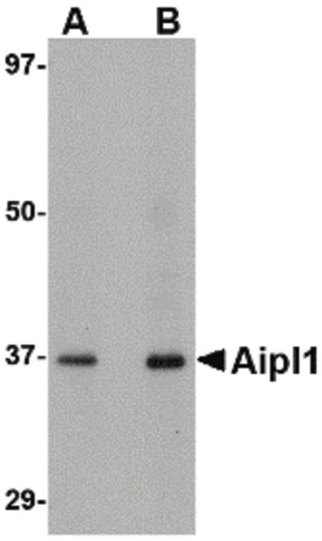 AIPL1 Rabbit anti-Human, Mouse, Polyclonal, Invitrogen 100 µg; Unconjugated