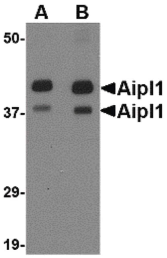 AIPL1 Rabbit anti-Human, Mouse, Rat, Polyclonal, Invitrogen 100 µg;