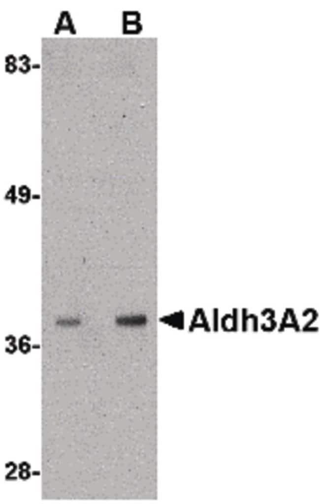 ALDH3A2 Rabbit anti-Human, Mouse, Polyclonal, Invitrogen 100 µg; Unconjugated